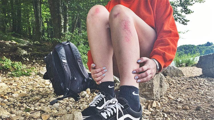 Vaseline can help rashes and itchiness